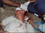 http://www.pattayadailynews.com/en/2010/03/29/american-bashed-by-muay-thai-boxer-on-pattaya-beach-road/