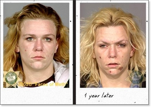 http://www.damnfunnypictures.com/Weird/807/Faces-Of-Meth/