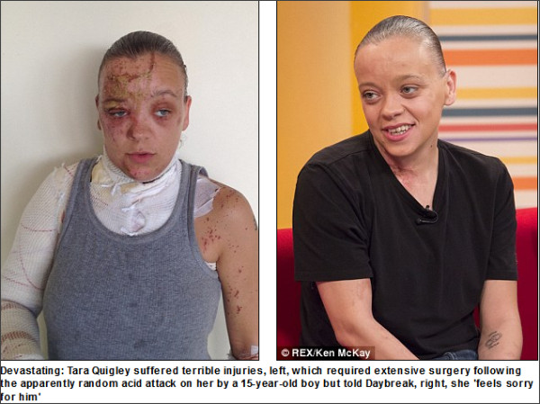 http://www.dailymail.co.uk/news/article-2421748/Tara-Quigley-Bravery-woman-28-scarred-doorstep-acid-attack-15-year-old-boy.html