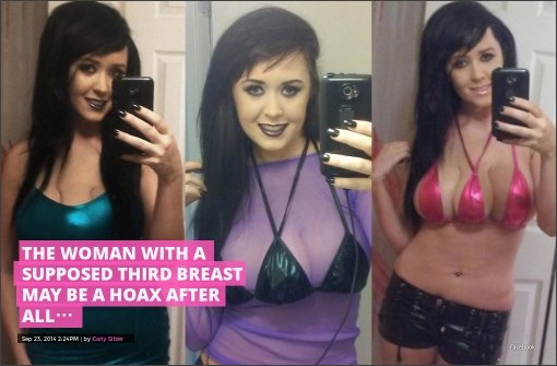 http://www.intouchweekly.com/posts/the-woman-with-a-supposed-third-breast-may-be-a-hoax-after-all-43372