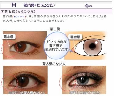 http://www.veriteclinic.jp/progress/eyes_mouko.html#2