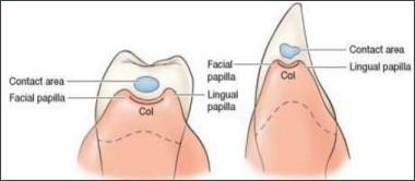http://image.slidesharecdn.com/clinicalfeaturesofgingiva-130829094737-phpapp02/95/clinical-features-of-gingiva-14-638.jpg?cb=1377769702