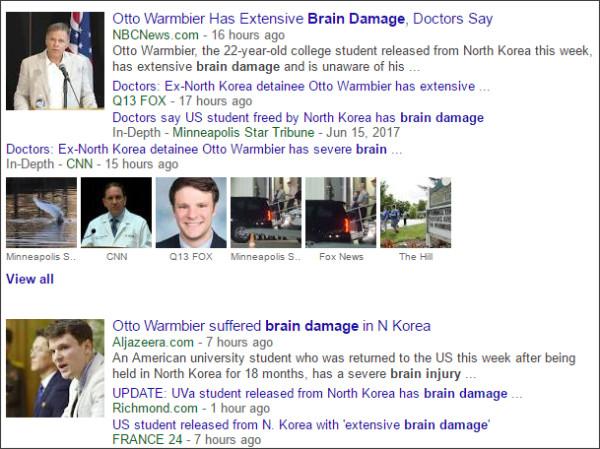 https://www.google.com/search?hl=en&gl=us&tbm=nws&authuser=0&q=Brain+Damage&oq=Brain+Damage&gs_l=news-cc.3..43j0l10j43i53.2369.5628.0.5800.12.8.0.4.4.0.139.1027.0j8.8.0...0.0...1ac.1.CryKNFR3r30