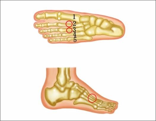 中足骨の疲労骨折|古東整形外科・内科
