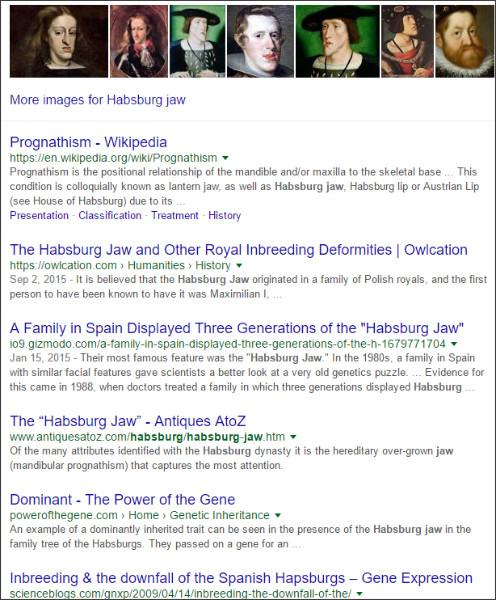 https://www.google.co.jp/?hl=EN&gws_rd=cr&ei=xaUwVt7eFM_KjwPjtYe4DA#hl=EN&q=Habsburg+jaw