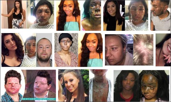 https://www.google.co.jp/search?q=london+acid+attack+victim&source=lnms&tbm=isch&sa=X&ved=2ahUKEwj1i6_bjfnaAhXHV7wKHQYHDUgQ_AUoAXoECAAQAw&biw=1920&bih=949
